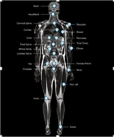 magnetic resonance body map fieldstrength