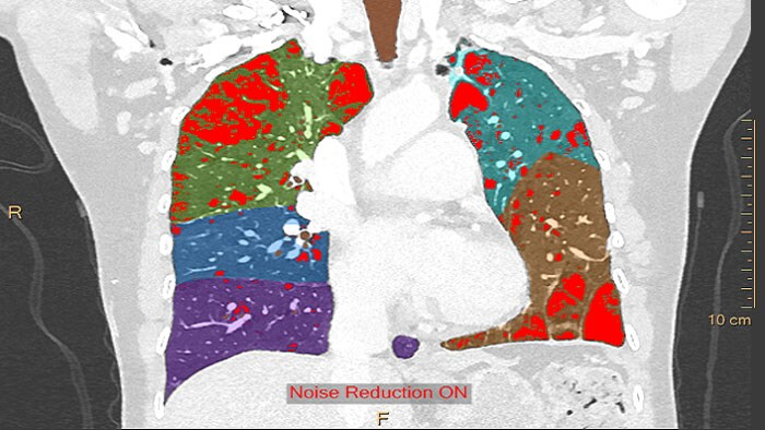 CT COPD