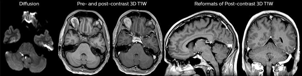 pre and post contrast brain mri in ed