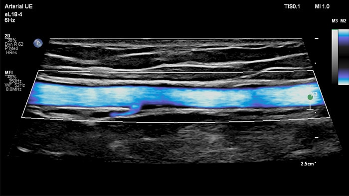 Image with MicroFlow Imaging vascular ultrasound Arterial