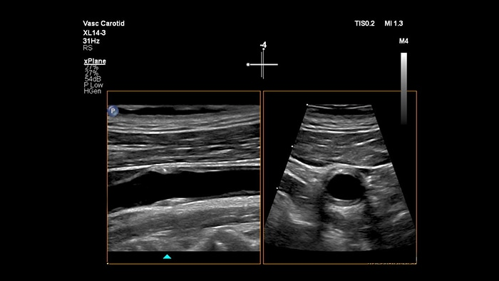 Example of an image retrieved with xPlane imaging vascular ultrasound Philips