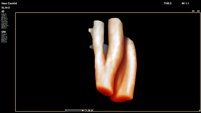 Example of a 3D vessel cast image retrieved with Philips XL14-3 xMATRIX linear array transducer vascular ultrasound